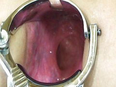 Anal, Wife, Wife anal, Speculum